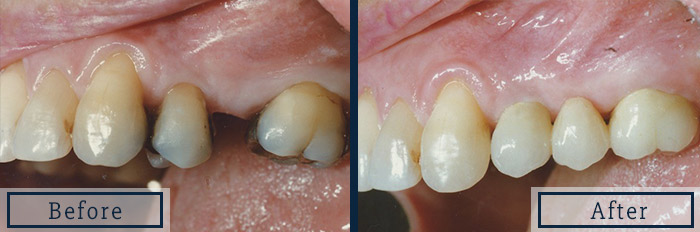porcelain bridge replace missing molar